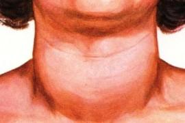 Гуша – симптоми и признаци