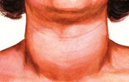 Дифузна гуша