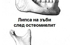 Остеомиелит на челюстите