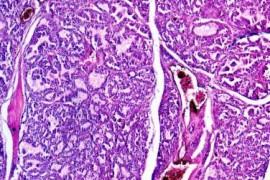 Базедова болест (Тиреотоксикоза) – видове и форми