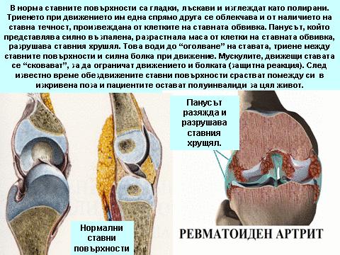 артрит