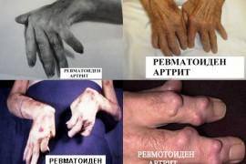 Артрит и артроза – лечение и симптоми