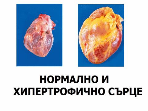 Хипертонично сърце