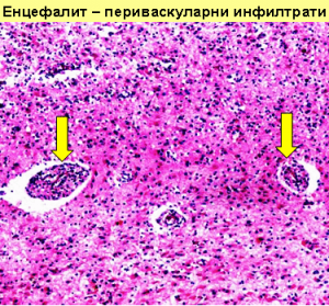 енцефалит
