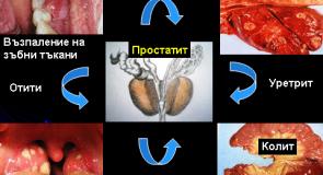 Остър и хроничен простатит – лечение и симптоми