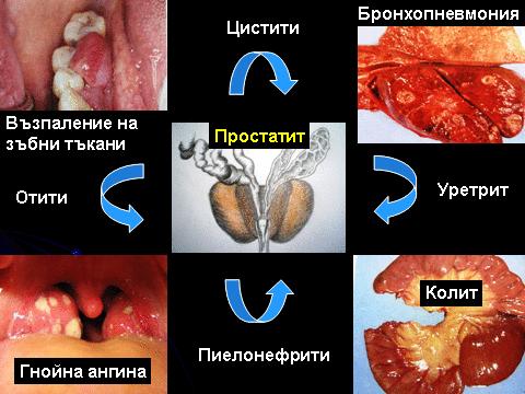 издоената простата 2