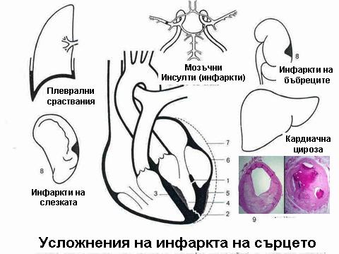 инфаркт 1