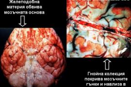 Менингит – симптоми