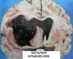 мозъчен удар 1