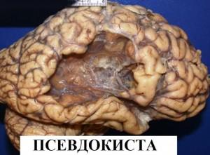 мозъчен удар 4