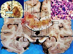 мозъчни тумори