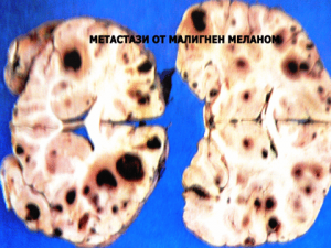 мозъчни тумори 6