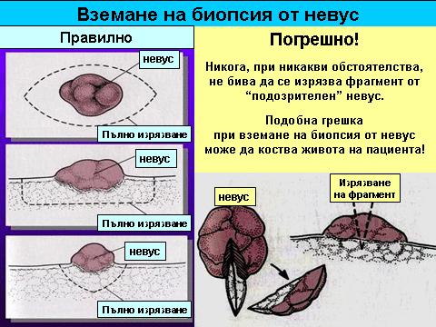 бенки - меланом