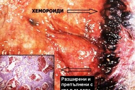 Хемороиди – лечение и снимки