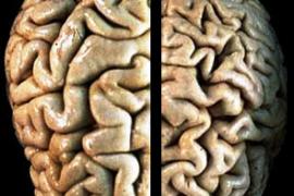 Алцхаймер – лечение, симптоми и причини