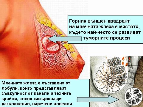 Бучка в гърдата