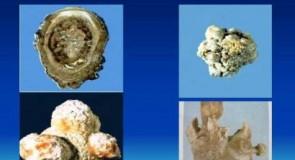 Бъбречни и жлъчни камъни