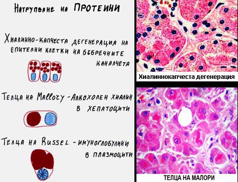 Клетъчни натрупвания