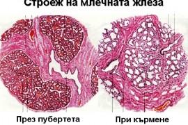 Мастит – видове, симптоми и лечение
