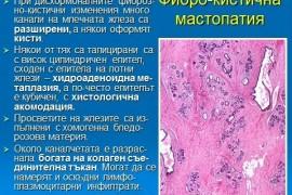 Мастопатия – лечение и симптоми