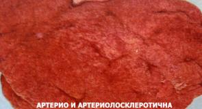 Нефросклерози