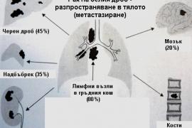 Рак на белия дроб – симптоми и лечение