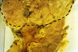 Рак на бъбрека – симптоми и лечение