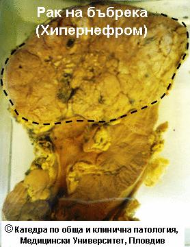 Рак на бъбрека