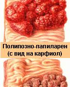 Рак на дебелото черво – симптоми, лечение и предпазване