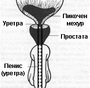 Хирургично лечение на рак на простатата