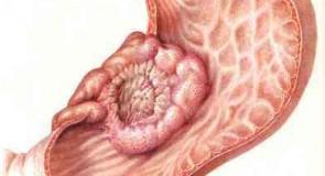 Рак на стомаха – причини, симптоми, лечение