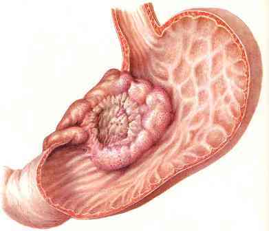 Рак на стомаха - паницовидна форма