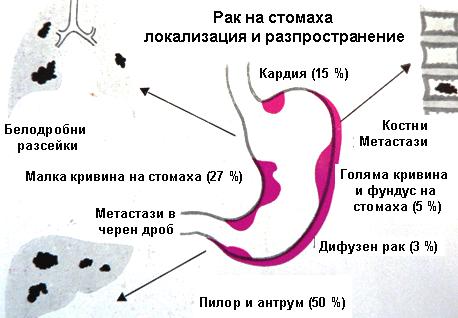 Рак на стомаха