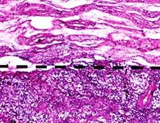 Рак на тестиса – симптоми и лечение