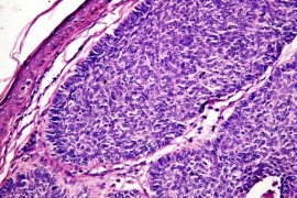 Рак на устните