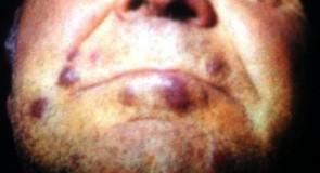 Сарком на Капоши – снимки, симптоми и лечение