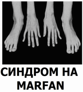 Синдром на Марфан