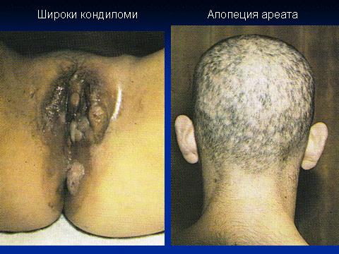 Сифилис и трипер