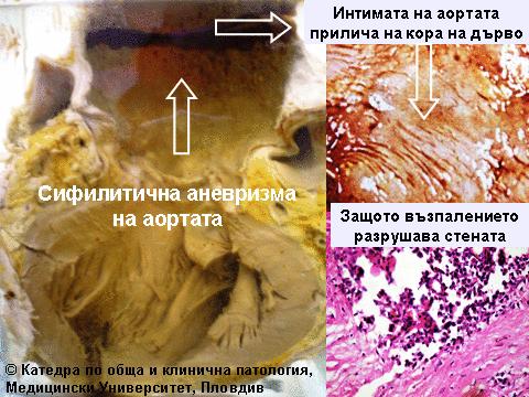 Сифилис