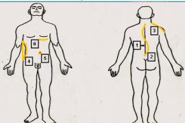 Сколиоза – симптоми и лечение