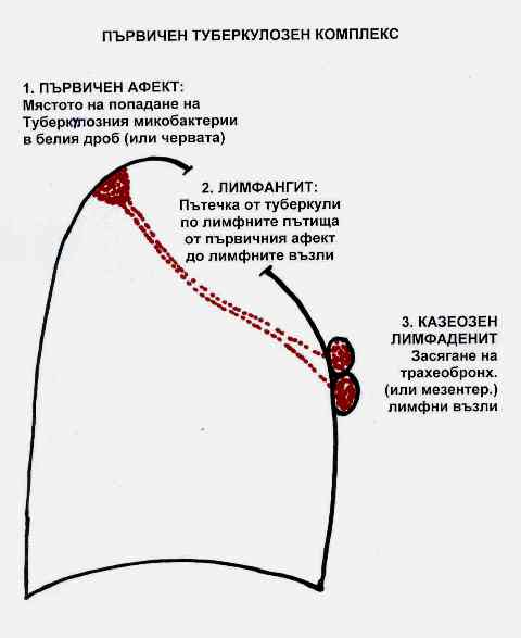 Туберкулоза  2
