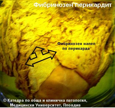 Фибринозен перикардит
