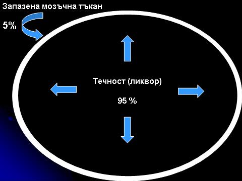 Хидроцефалия