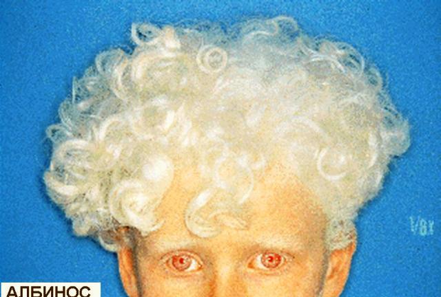албинос
