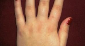 Болки в ръката – лечение и причини