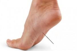 Болки в стъпалата