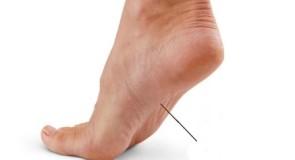 Болки в ходилата на краката