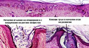 Кокоши трън – причини и лечение