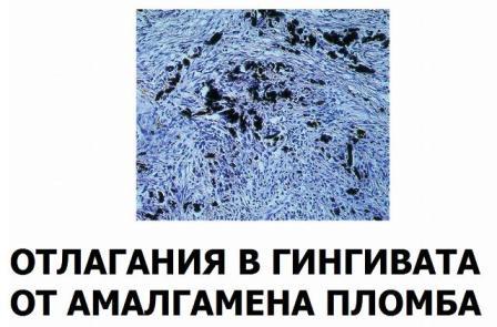 отлагания в гингивата от амалгамена пломба