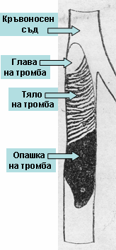 тромбоза